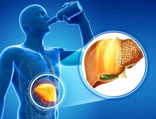 8 Natural Home Remedies for Fatty Liver and to Boost Liver Function
